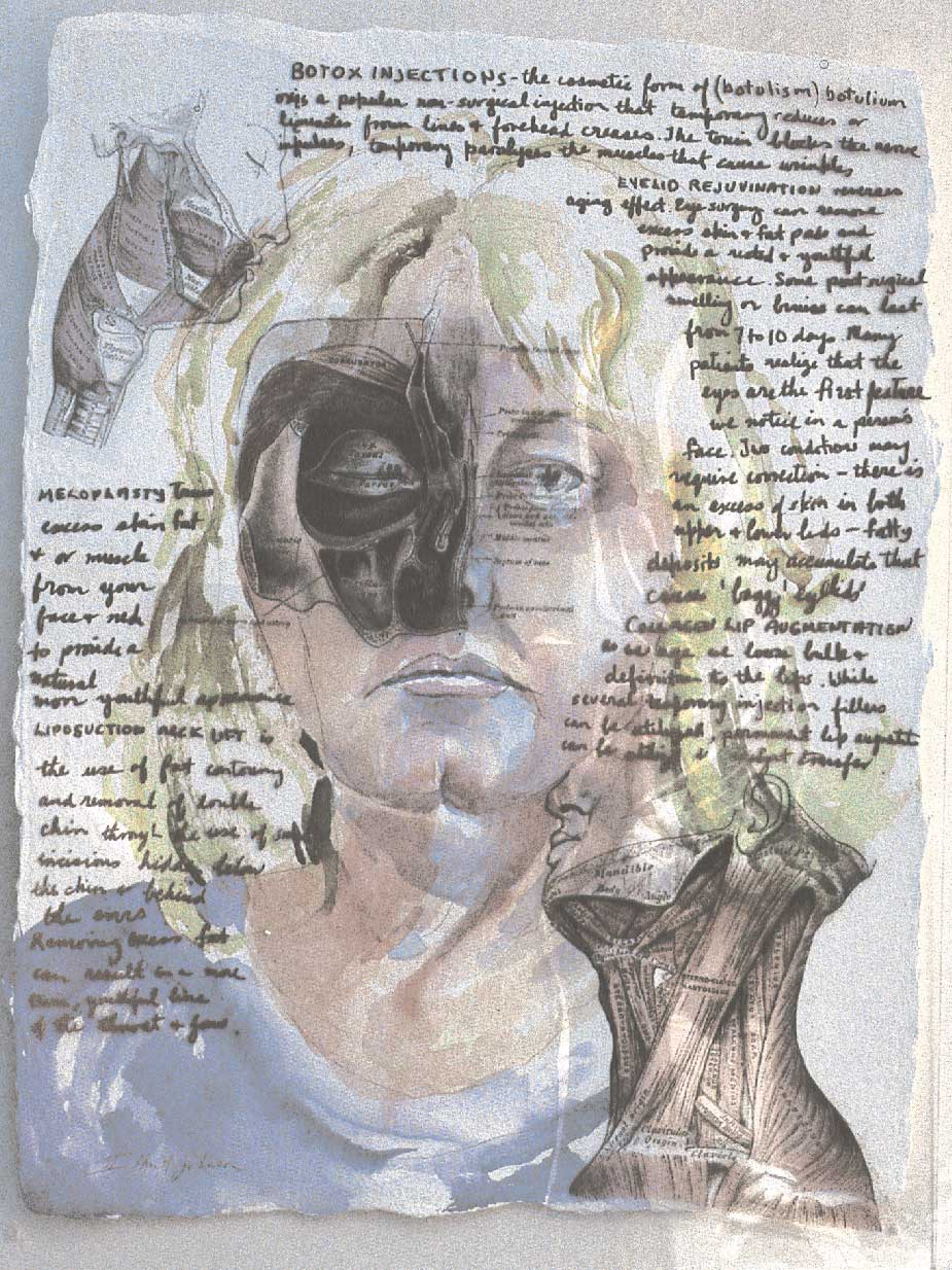 Self-portrait, contemplating surgical intervention by Isabelle Hunt-Johnson