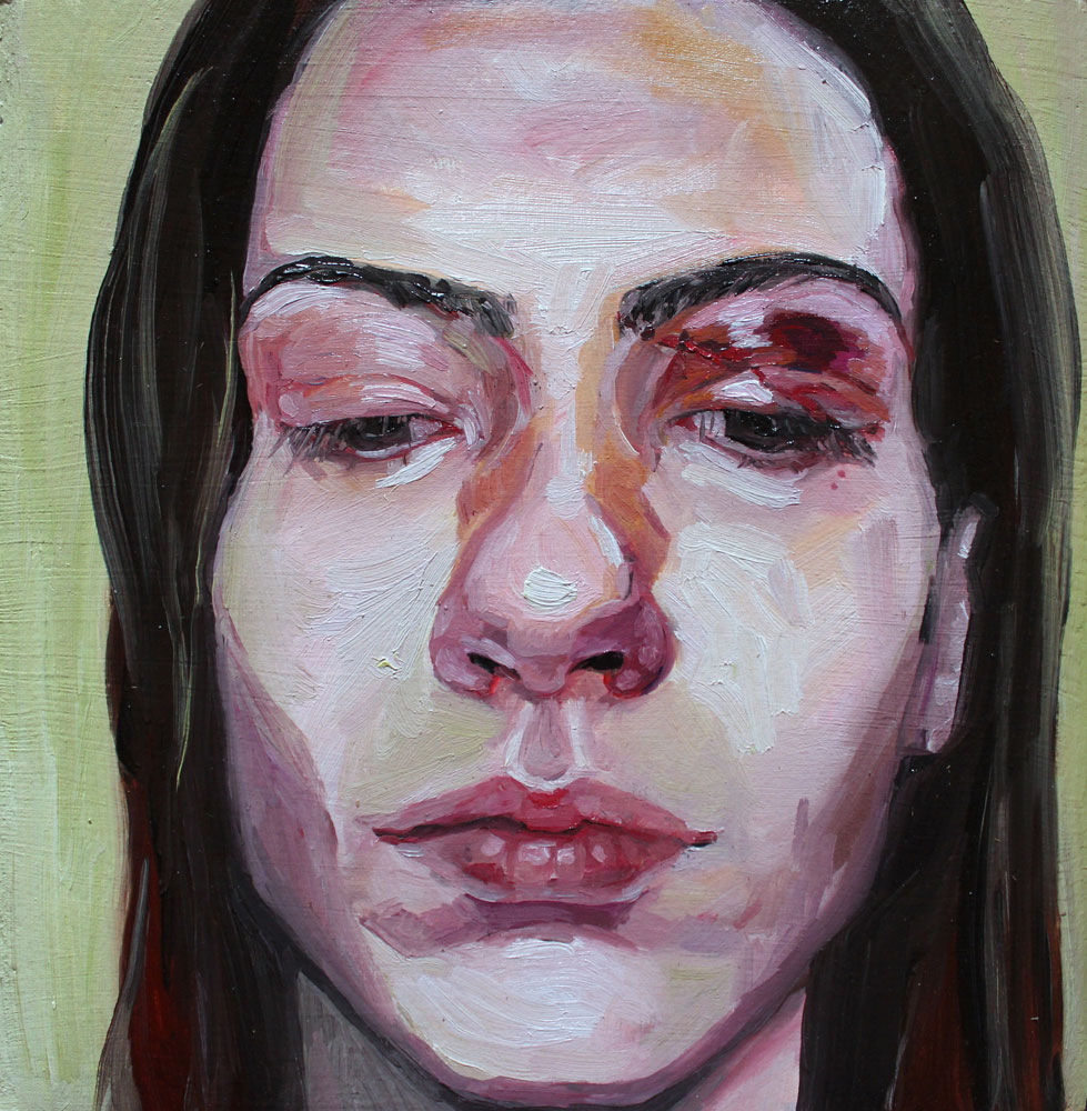 Self Portrait With Black Eye by Sarah Van Dusen